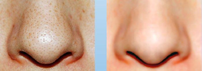 鼻のぶつぶつを専用ベースメイクで綺麗に隠している画像
