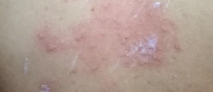 化膿ニキビの画像