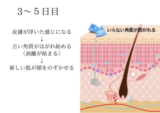 効果の仕組み3~5日目 表皮が剥離し始めて新しい皮膚が出る