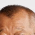 M字はげでも似合うかっこいいおすすめの髪型/実際に効果のあった育毛対策も紹介するよ♪