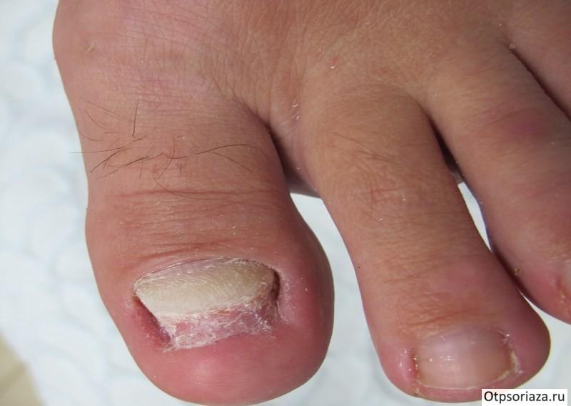 Grybelinis nagas ant rankų nei onichomikozė