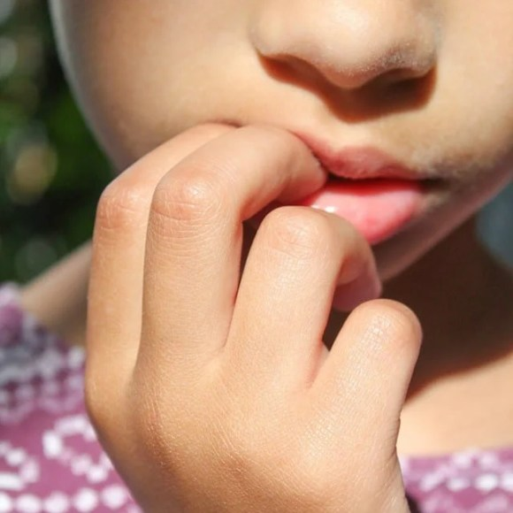 5 Ways to Control Nail Biting in Kids