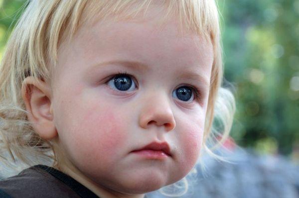Как выглядит диатез у детей до года и старше: фото ...
