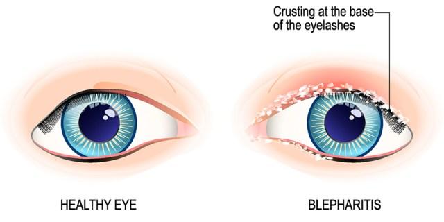 healthy eye and bacterial blepharitis