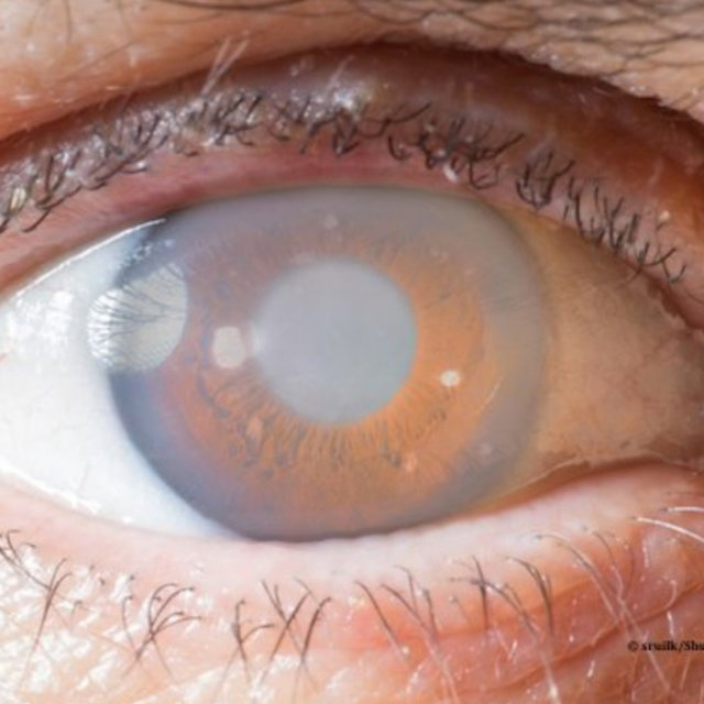 glaucoma glaucomatous eye