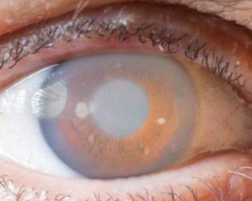 Glaucomatous Eye