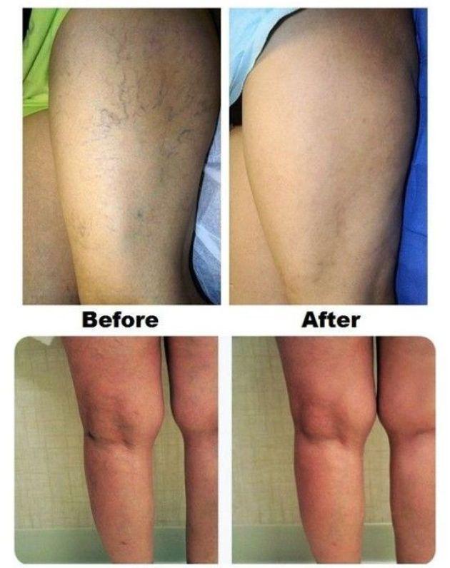 natural remedies against varicose veins