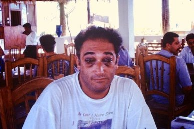 Glenn's Eye Squeeze after diving The Sinai