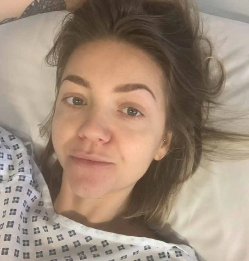 Rachels real life story recovering from a laparotomy
