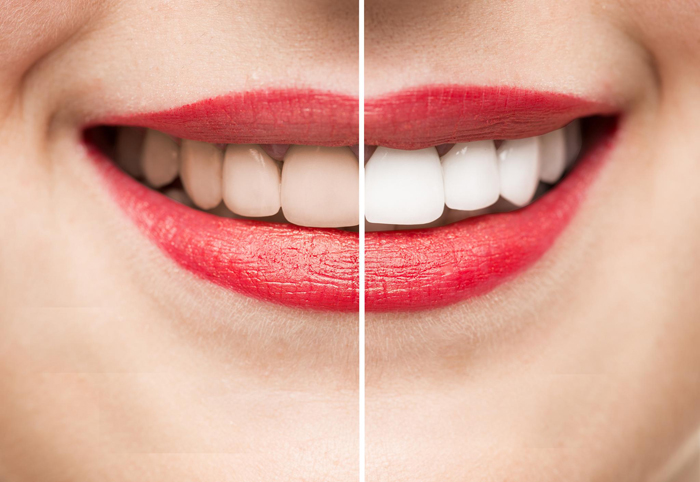 teeth_whitening_system