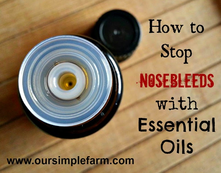 How to Stop a Nosebleed with Essential Oils