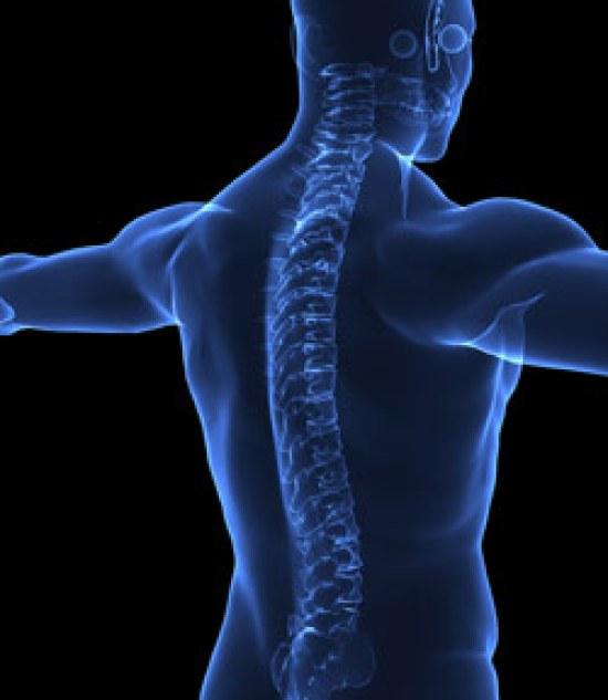 spine-3d-xrays