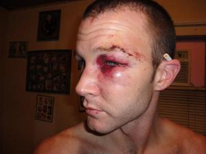 Gay man victim of a violent hate crime in Texas
