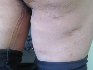 140220-cicatriz