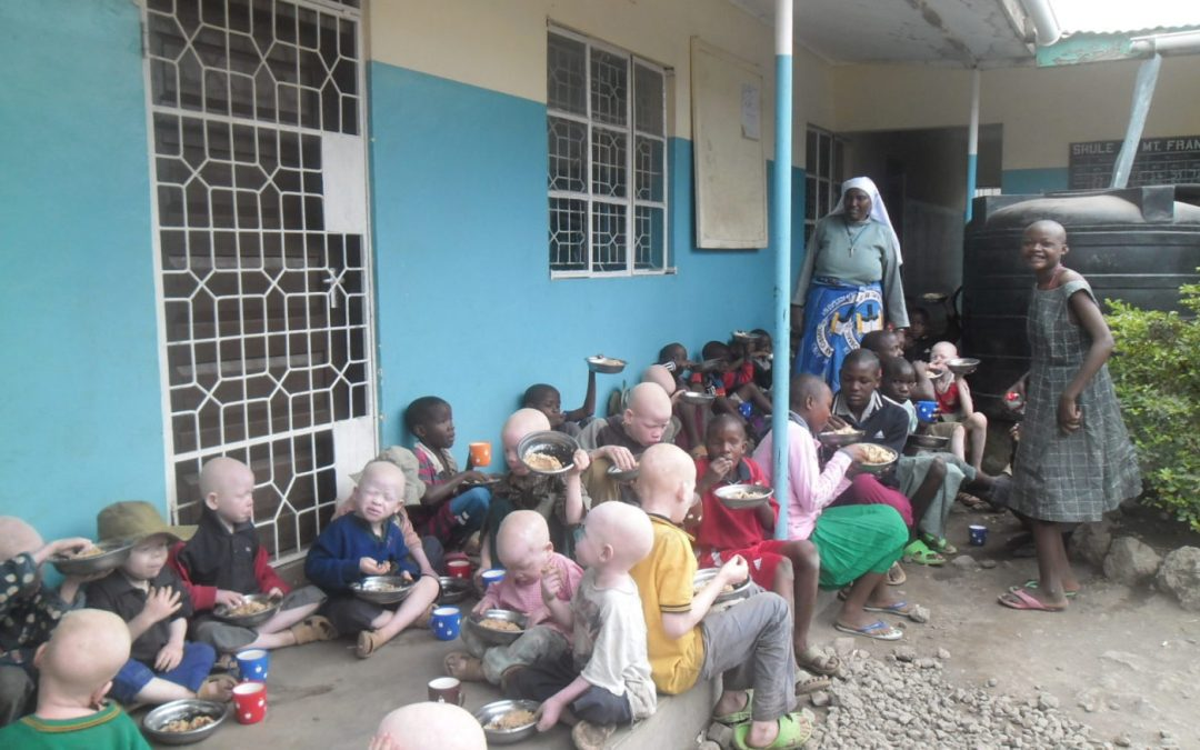 Fearful Albino Children in Africa Receive Outreach Program ...