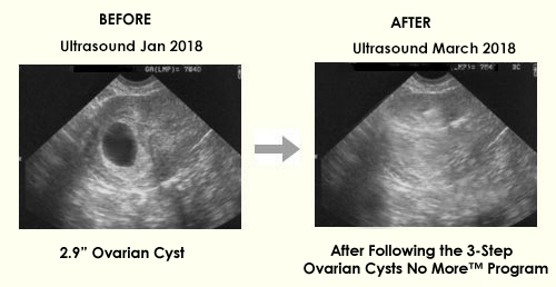 Ovarian Cyst Miracle (tm): *$39/sale! Top Ovarian Cysts Site On Cb!  Image of BA 33