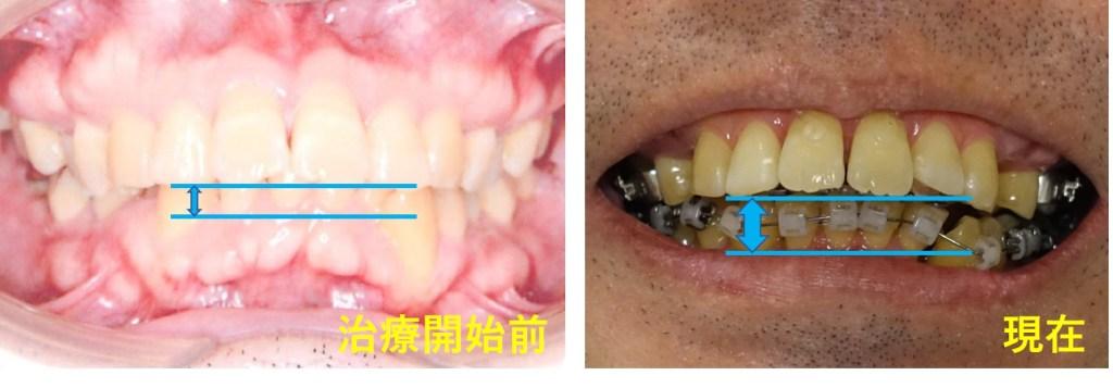 歯科矯正5か月 上あごが上がったのか下あごが下がったのか