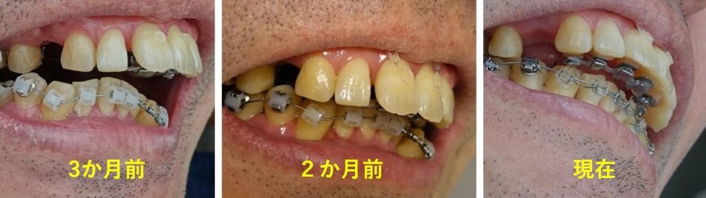 6か月目 上顎切歯の並びはキレイに その2