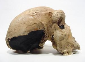 Teria este lado do crânio explodido devido a saída de um projétil?