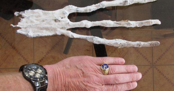 mão com três dedos