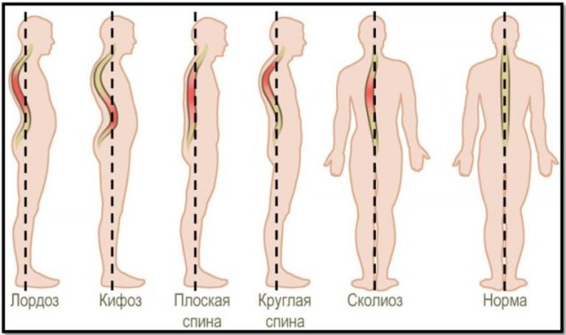 лордоз, кифоз, плоская спина, круглая спина, сколиоз, норма