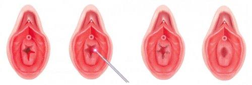 гименопластика