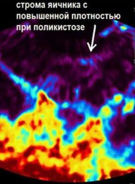 Что такое очаговый склероз стромы, в том числе желудка и эндометрия? Что такое склероз стромы эндометрия и как лечить это заболевание