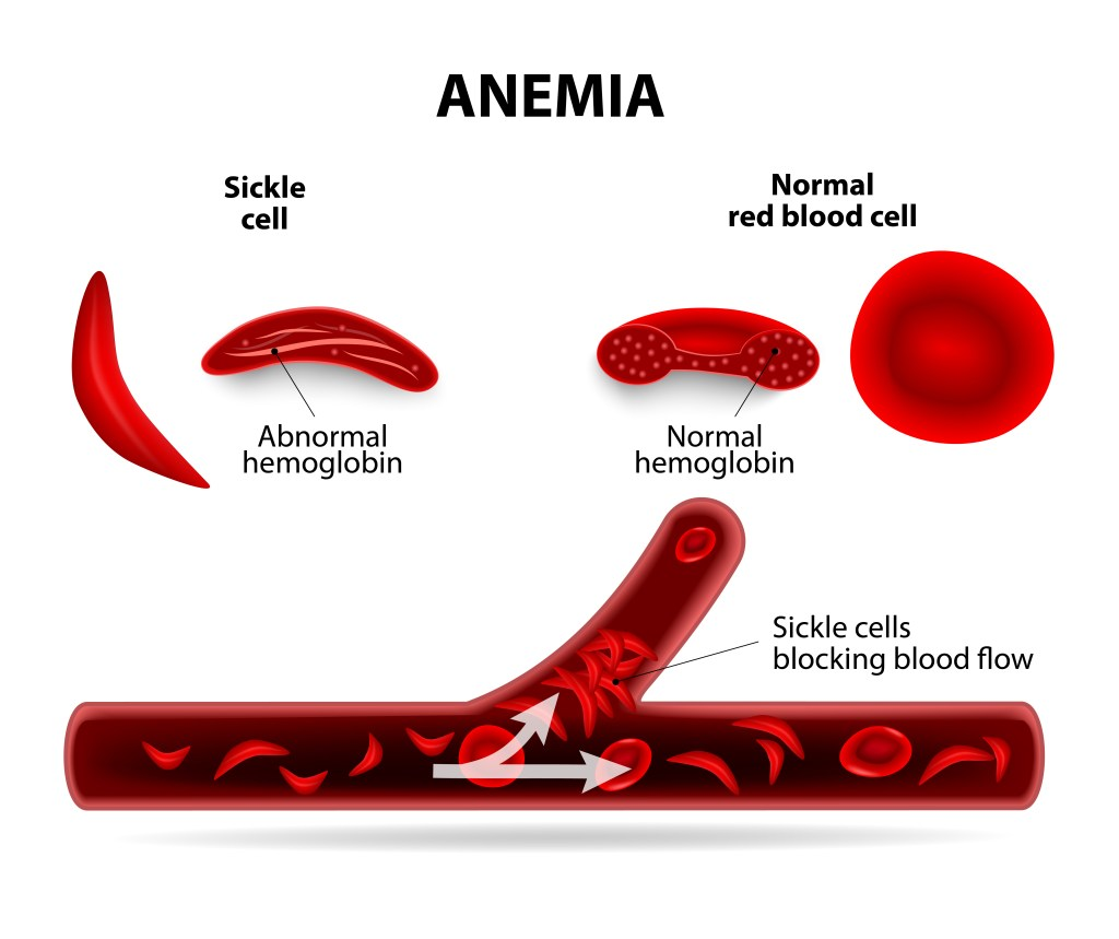 research page american sickle cell anemia association - HD 1024×859