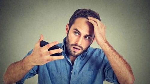 Erkek tipi saç dökülmesi ne zaman durur?