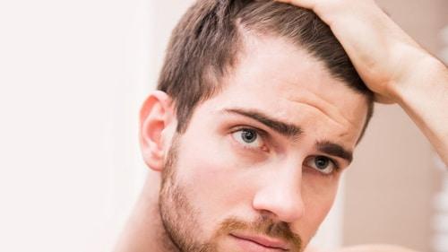 Saç Ekimi Ameliyatı Sonrası İnce Büyüyen Saçlar
