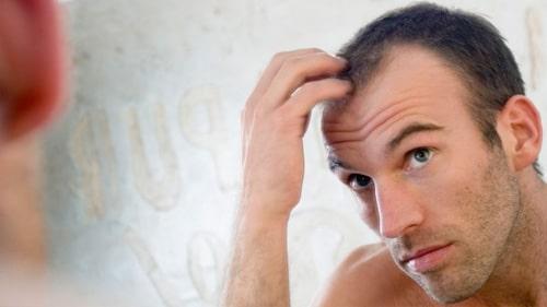 Saç Ektirmeyi Düşünüyorsanız…