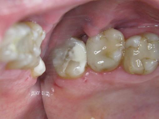 molar-28-gcp-repair