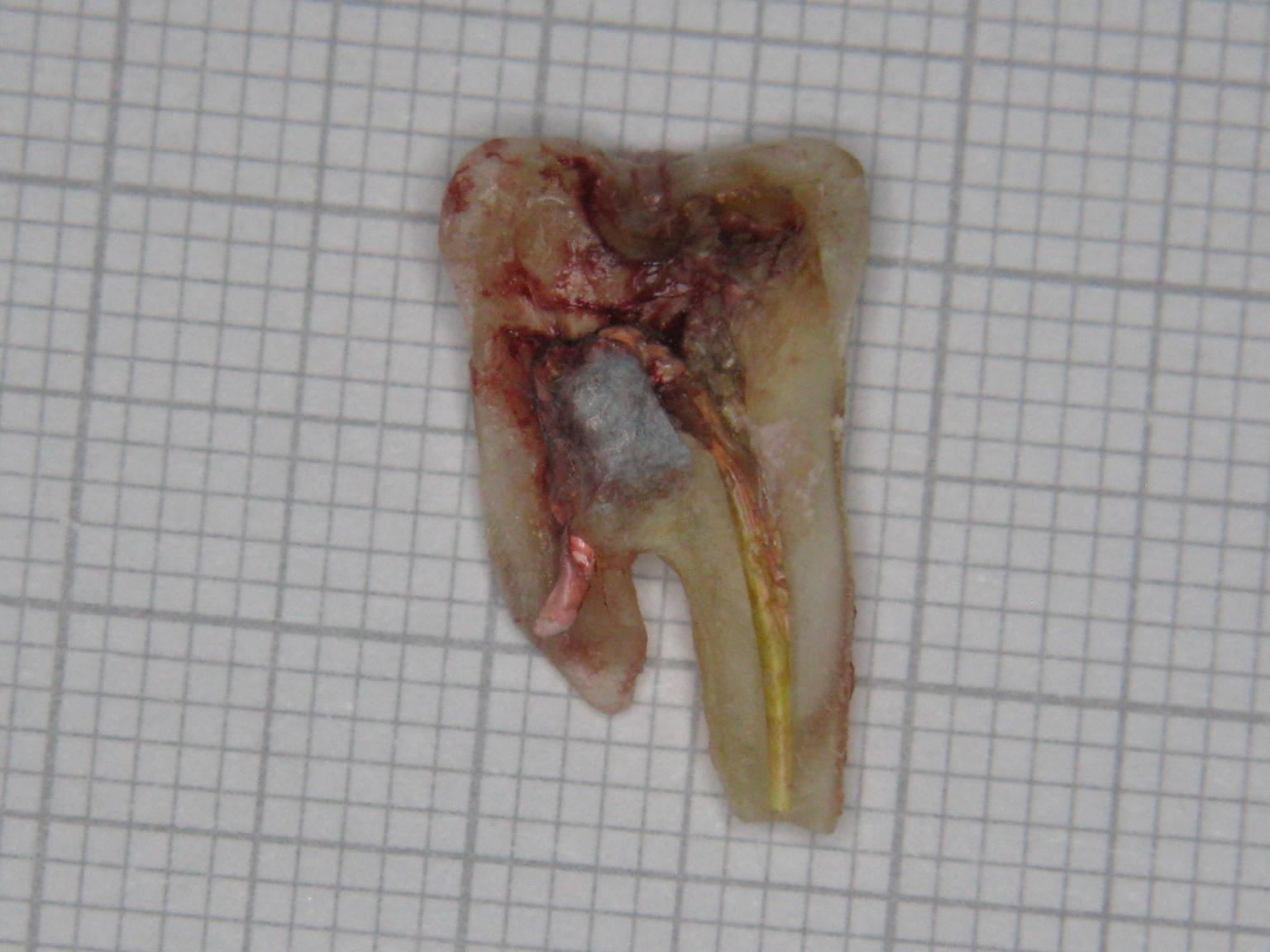molar-47-extracted-part-1