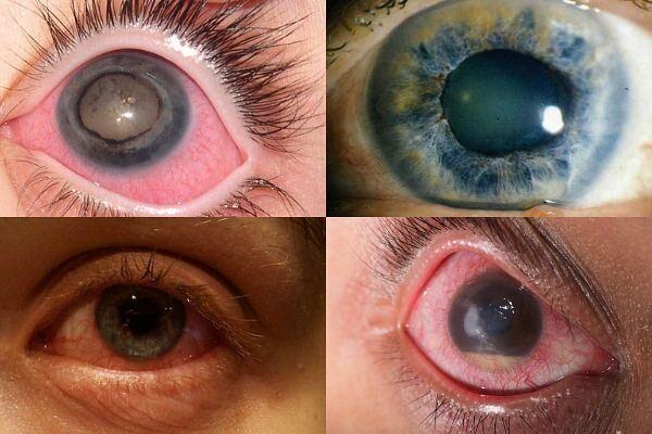a glaukóma szakaszai a látómező szerint