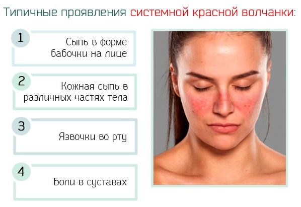 Красная волчанка: симптомы, причины, фото у женщин и мужчин