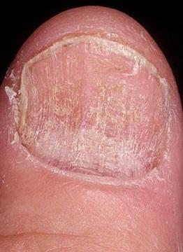 Грибок ногтей, фото начальная стадия. Симптомы и лечение ...