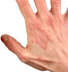 Дерматит у взрослых: фото, симптомы и лечение в домашних ...