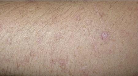Как выглядит рак кожи: фото начальной стадии. Симптомы ...