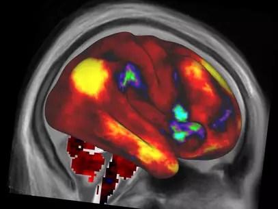 Na imagem, ummapa de conectividade funcionalmédia no córtex cerebral. Regiões em amarelo são funcionalmente ligadas a uma sementelocalizada no lobo parietal do hemisfério direito, enquanto que as regiões em vermelho e laranja são fracamente ligadas ou não apresentamligação Foto: Human Connectome Project / Divulgação