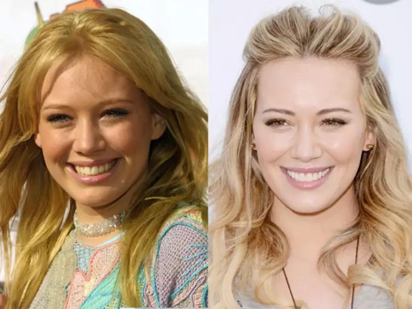 A fórmula dentes alinhados e sorriso super branco era o que Miley Cyrus precisava, e conseguiu. Dá para ver que mudança é com ela mesma. Foto: Getty Images