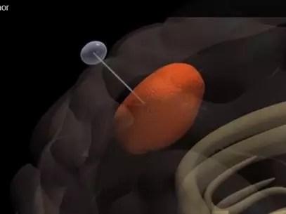Segundo especialistas, a técnica pode ser eficaz contra um dos tipos mais agressivos de câncer, o gliobastoma Foto: Reprodução