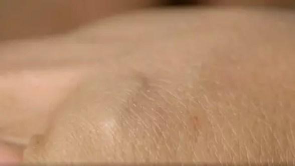 O microchip é implantado debaixo da pele, entre o polegar e o indicador.