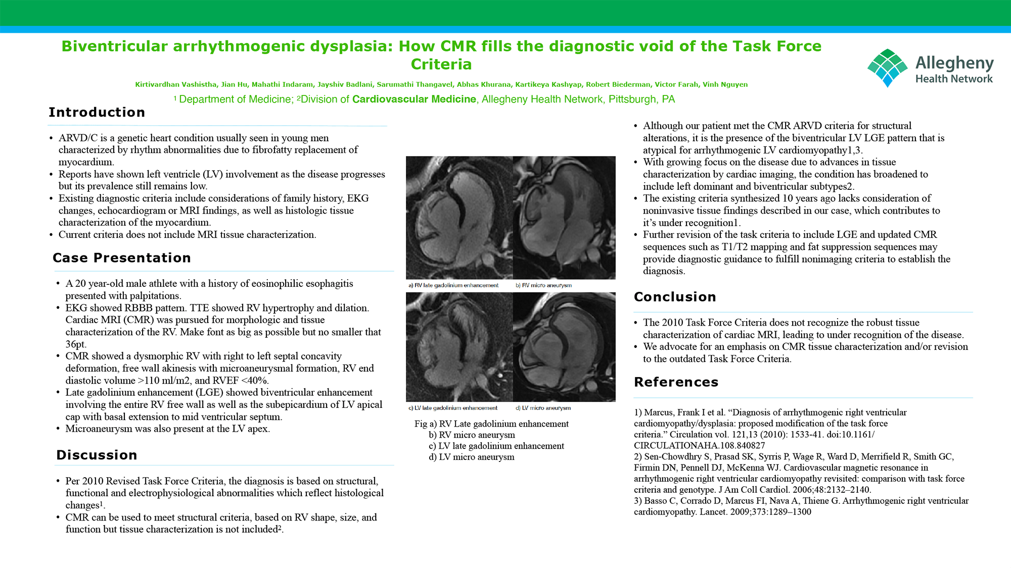 Kirtivardhan Vashistha - PAW-17-Biventricular arrhythmogenic dysplasia- How CMR fills the diagnostic void of the Task Force Criteria