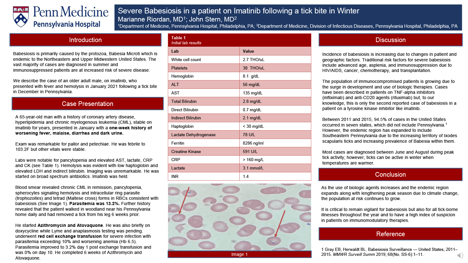 Marianne Riordan - PAS-75-Severe-Babesiosis-in-a-patient-on-Imatinib-following-a-tick-bite-in-December