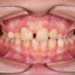 Cross bite dei denti posteriori