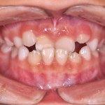 Cross bite dei denti anteriori