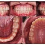 risultato finale dente in arcata
