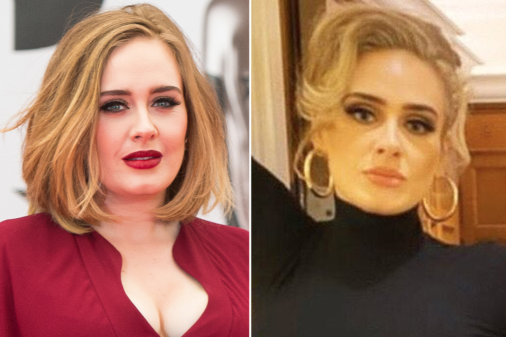 Did Adele Have Plastic Surgery Doctors Weigh In On Her Weight Loss