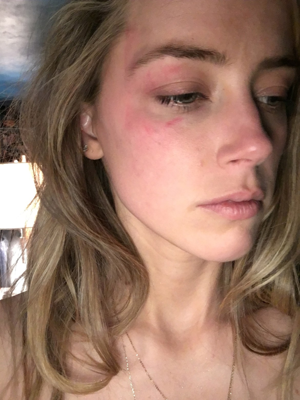 Court sees photos of Amber Heard's bruised face