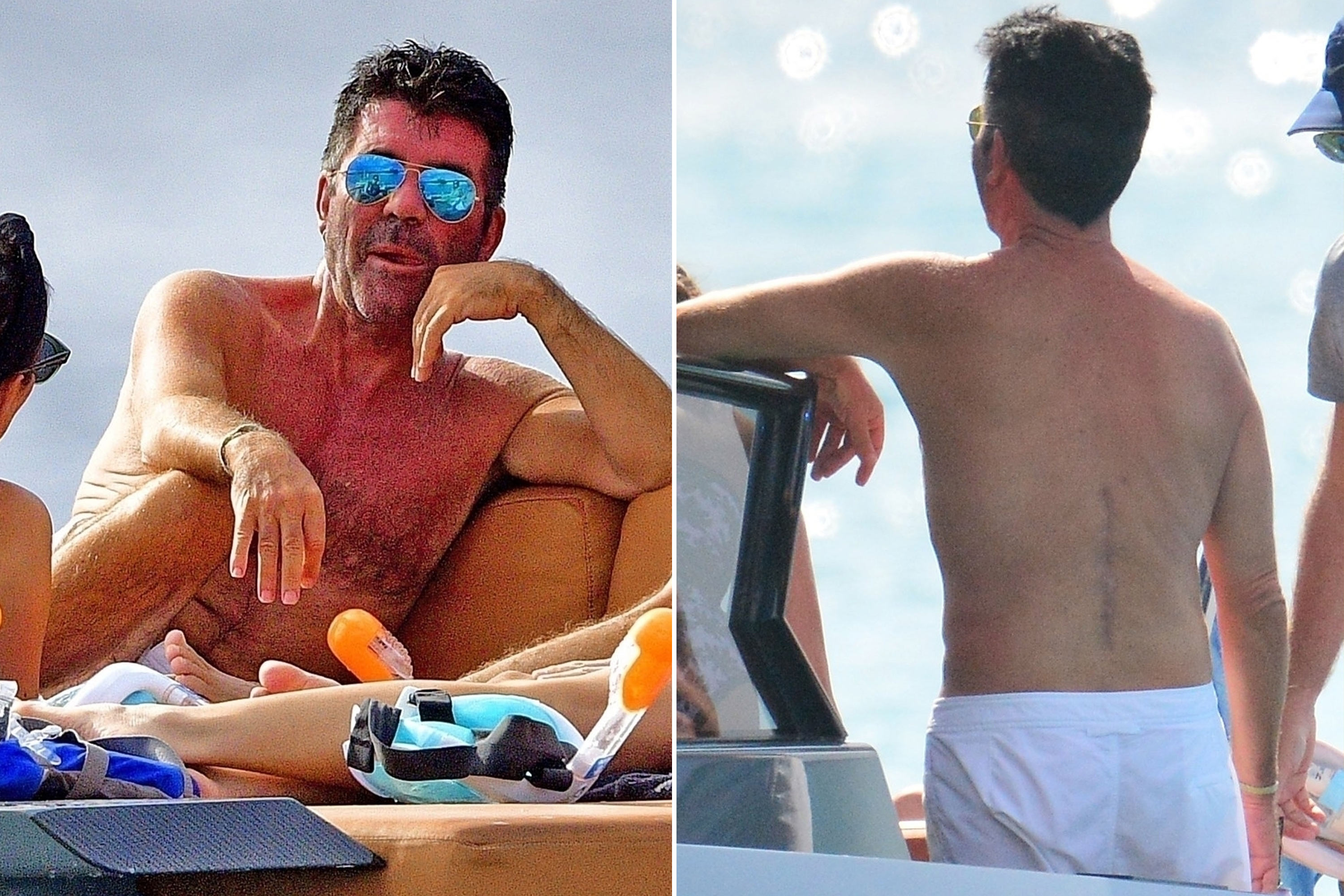 Simon Cowell reveals large scar from back surgery